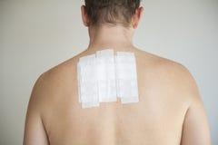 Задняя часть человека с испытанием аллергии Стоковые Фотографии RF