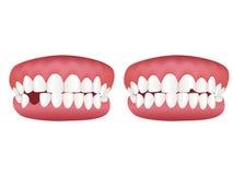 здоровый модельный зуб Стоковые Изображения