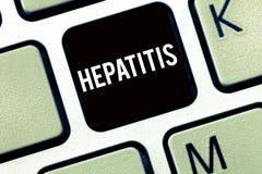 Знак текста показывая гепатит Схематическое заболевание фото a описало воспалением инфекции печени вирусной стоковая фотография rf