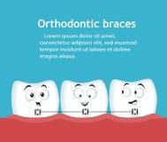 Знамя ортодонтических расчалок с характерами зубов иллюстрация штока