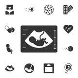 Значок Ultrasonography Простая иллюстрация элемента Дизайн символа Ultrasonography от комплекта собрания беременности смогите иллюстрация вектора