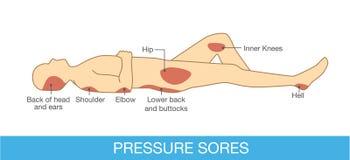 Зона болячек давления Стоковое фото RF