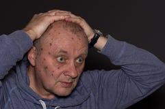 Зрелый человек после обработки жидкого азота стоковая фотография rf