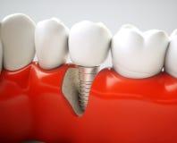 Зубной имплантат - перевод 3d Стоковое фото RF