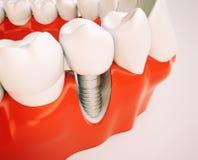 Зубной имплантат - перевод 3d Стоковые Фотографии RF