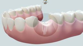 Зубной имплантат яркий иллюстрация вектора