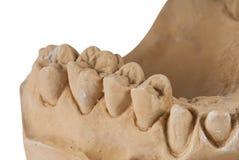 Зубоврачебная изолированная челюсть стоковая фотография rf