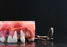зубоврачебная модель Стоковое фото RF