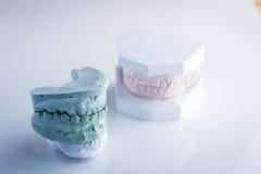 Зубоврачебная модель зуба на белой предпосылке Стоковое фото RF