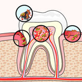 Зубоврачебные заболевания Стоковые Изображения