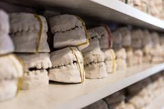Зубоврачебные модели гипса челюстей в офисе дантиста стоковые фото