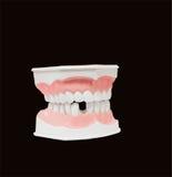 зубоврачебные модельные зубы Стоковое Изображение RF