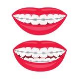 Зубоврачебные расчалки Улыбка с расчалками на зубах Выравнивание укуса зубов, правильного укуса зубов Зубоврачебная челюсть с рас бесплатная иллюстрация
