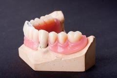 зубоврачебный воск модели детали стоковое изображение