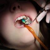 Зубоврачебный зуб процедуры, сверлить и заполнять стоковые изображения rf