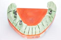 зубоврачебный изолированный протез стоковое фото rf