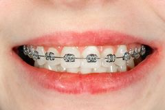 Зубоврачебный конец-вверх расчалок во время обработки в зубоврачевании ортодонта астетическом стоковая фотография rf