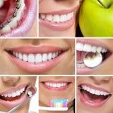 Зубоврачебный коллаж стоковая фотография