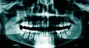зубоврачебный луч x Стоковое Фото