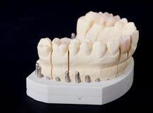 зубоврачебный модельный воск стоковое изображение rf