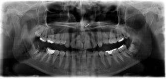 зубоврачебный панорамный луч x Стоковая Фотография
