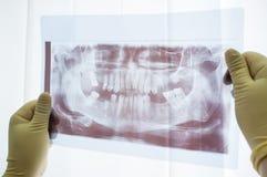 Зубоврачебный панорамный рентгеновский снимок конца челюсти вверх Стоковая Фотография