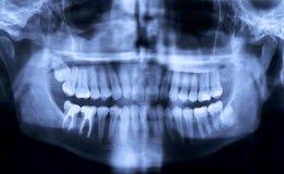 зубоврачебный панорамный луч x Стоковые Изображения