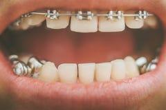 Зубоврачебный прибор и расчалки Стоковые Изображения