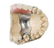 зубоврачебный протез Стоковые Фото