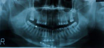 зубоврачебный рентгеновский снимок луча x Стоковые Изображения RF
