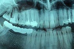 Зубоврачебный рентгеновский снимок рентгеновского снимка Стоковые Изображения