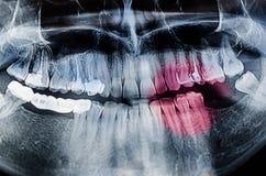 Зубоврачебный рентгеновский снимок рентгеновского снимка Стоковые Изображения RF