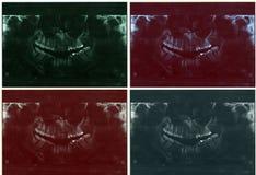 зубоврачебный рентгеновский снимок луча x Стоковые Фотографии RF
