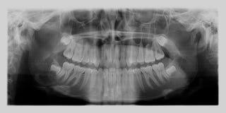 Зубоврачебный рентгеновский снимок Стоковые Фотографии RF