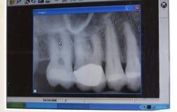 зубоврачебный самомоднейший луч x Стоковое Изображение RF