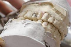 Зубоврачебный техник делая частично dentures акриловых смол Стоковое Изображение RF