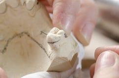 Зубоврачебный техник делая частично dentures акриловых смол Стоковая Фотография