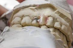Зубоврачебный техник делая частично dentures акриловых смол Стоковое фото RF