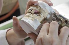 Зубоврачебный техник делая частично dentures акриловых смол Стоковая Фотография RF