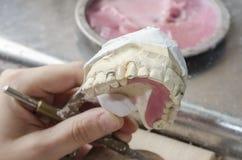Зубоврачебный техник делая частично dentures акриловых смол Стоковое Фото