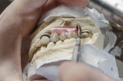 Зубоврачебный техник делая частично dentures акриловых смол Стоковое Изображение