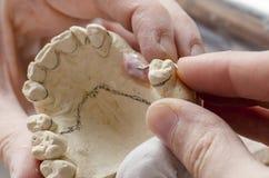Зубоврачебный техник делая частично dentures акриловых смол Стоковые Изображения RF