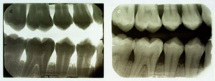 зубоврачебный луч x стоковые изображения rf