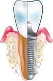 зубоврачебный implant Стоковое Изображение RF