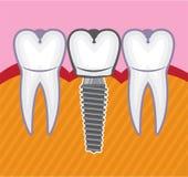 зубоврачебным белизна взгляда элементов изолированная implant Стоковое фото RF