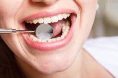 Зубоврачевание, зубоврачебный, рот и зубы закрывают вверх по усмехаться Стоковые Фото