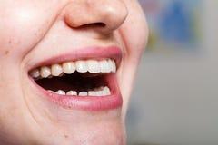 Зубоврачевание, зубоврачебный, рот и зубы закрывают вверх по усмехаться Стоковое Изображение
