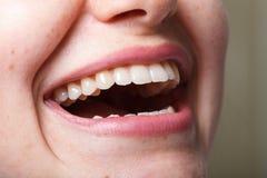 Зубоврачевание, зубоврачебный, рот и зубы закрывают вверх по усмехаться Стоковое Изображение RF