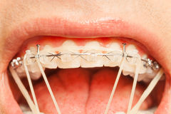 Зубы верхней челюсти с расчалками и кольцами коррекции Стоковые Фотографии RF