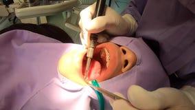Зубы видео очищая зубоврачеванием дантиста в больнице акции видеоматериалы